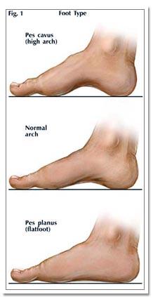 Treatment For Foot Problems In Augusta Ga Georgia