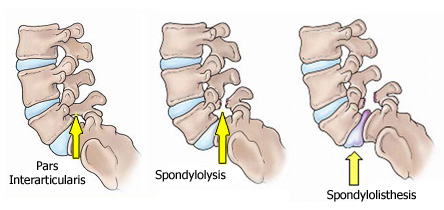 spondylosis and spondylothesis Looking for online definition of spondylolisthesis in the medical dictionary spondylolisthesis explanation free spondylosis, and spondylolisthesis.